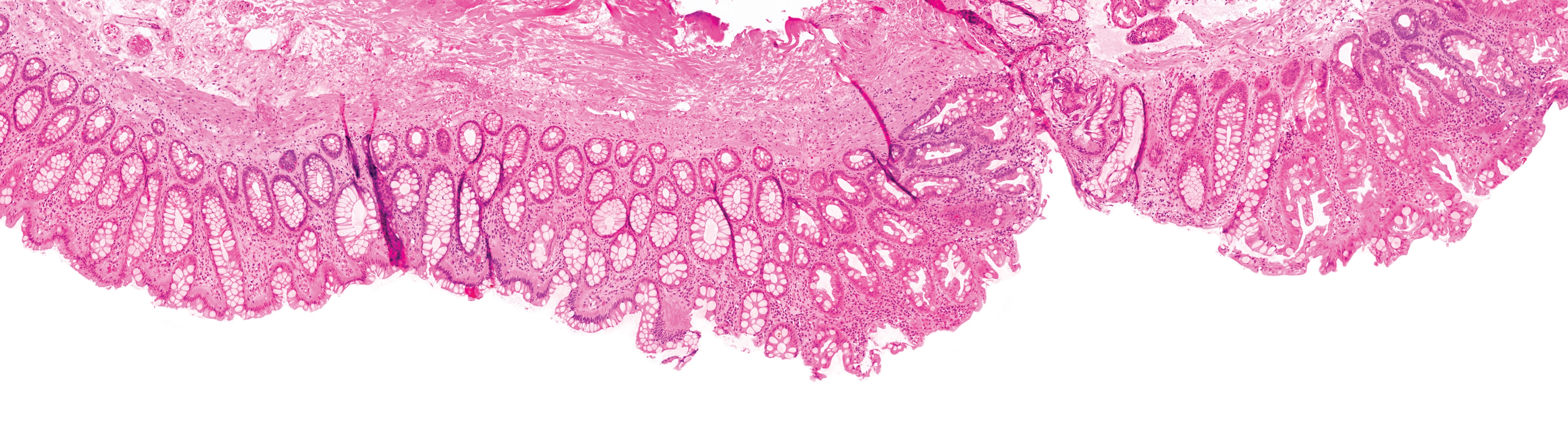 Covid-19 Impact on Digital Pathology in the Healthcare Industry