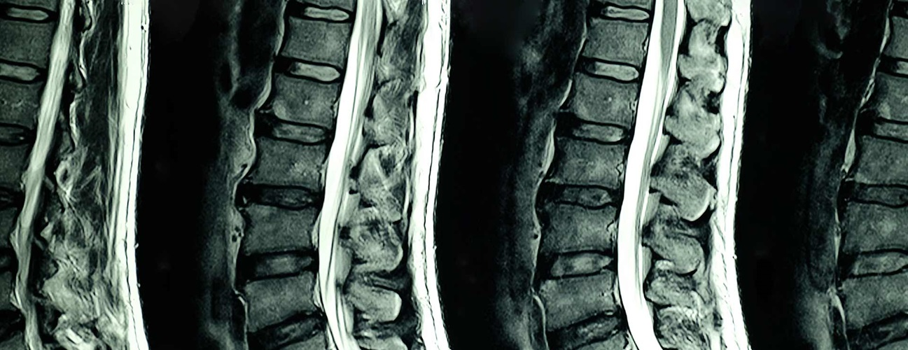 COVID-19 Impact on Spinal Imaging in Healthcare Industry