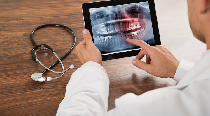 COVID-19 Impact on the Tele-Dentistry in Healthcare Industry