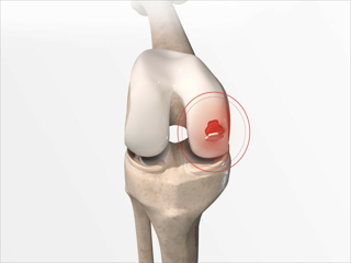COVID-19 Impact on Knee Cartilage Repair in Healthcare Industry
