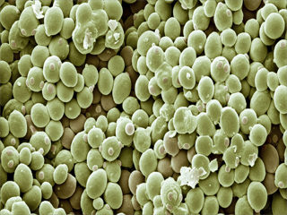COVID-19 Impact on Yeast in Food and Beverage Industry