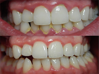 COVID-19 Impact on Periodontitis in Healthcare Industry