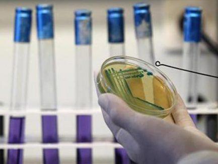 #Bioburden_Testing_Market