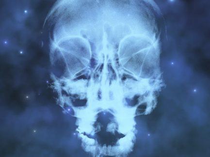Europe X-Ray Detectors Market