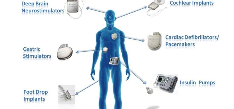 Global active implantable medical devices market industry trends and forecast to 2024 - Ablation chambre implantable ...